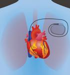 Совместимость слуховых аппаратов с кардиостимуляторами