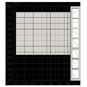 Opn1_IIC_10_75_fitting